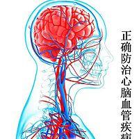 正确防治心脑血管疾病