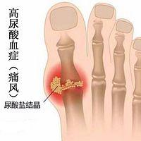 高尿酸血症(痛风)