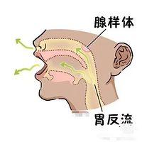 过敏性鼻炎扁桃体肿大腺样体肥大