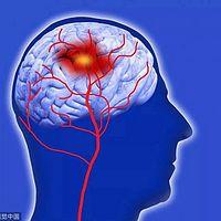 神经外科大脑修理匠